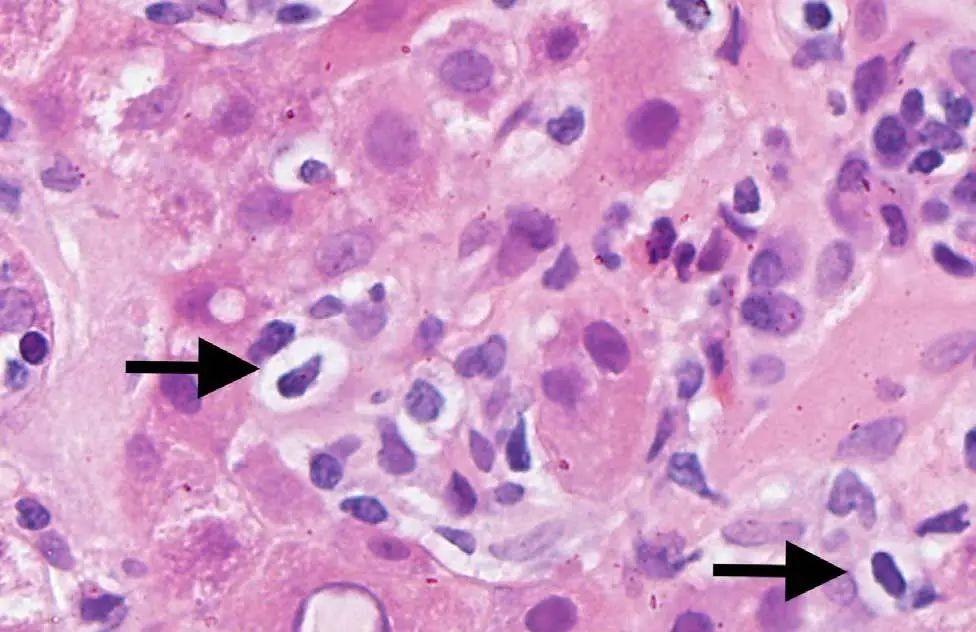 肌肤出現小水泡后又产生新生儿黄疸?——共享一例「神密」病案