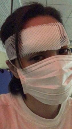 阿娇伤势细节曝光:眉骨撕裂 或需要做第二次手术