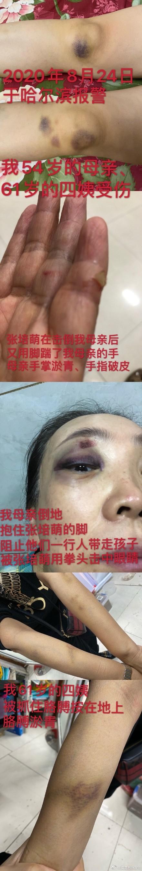 短跑名将张培萌妻子控诉遭家暴,男方否认