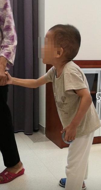 """深圳2岁半男童2000多度近视、驼背、消瘦,经基因检测确诊为""""天才病"""""""
