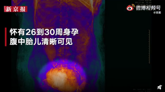 世界第一具!波蘭發現2000年前孕婦木乃伊,腹中胎兒清晰可見