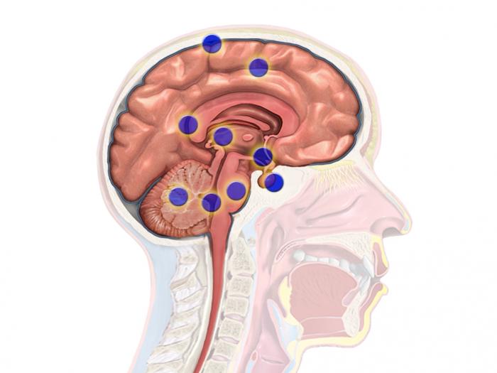 试验显示一种侵袭性脑癌个性化疗法显示出良好疗效