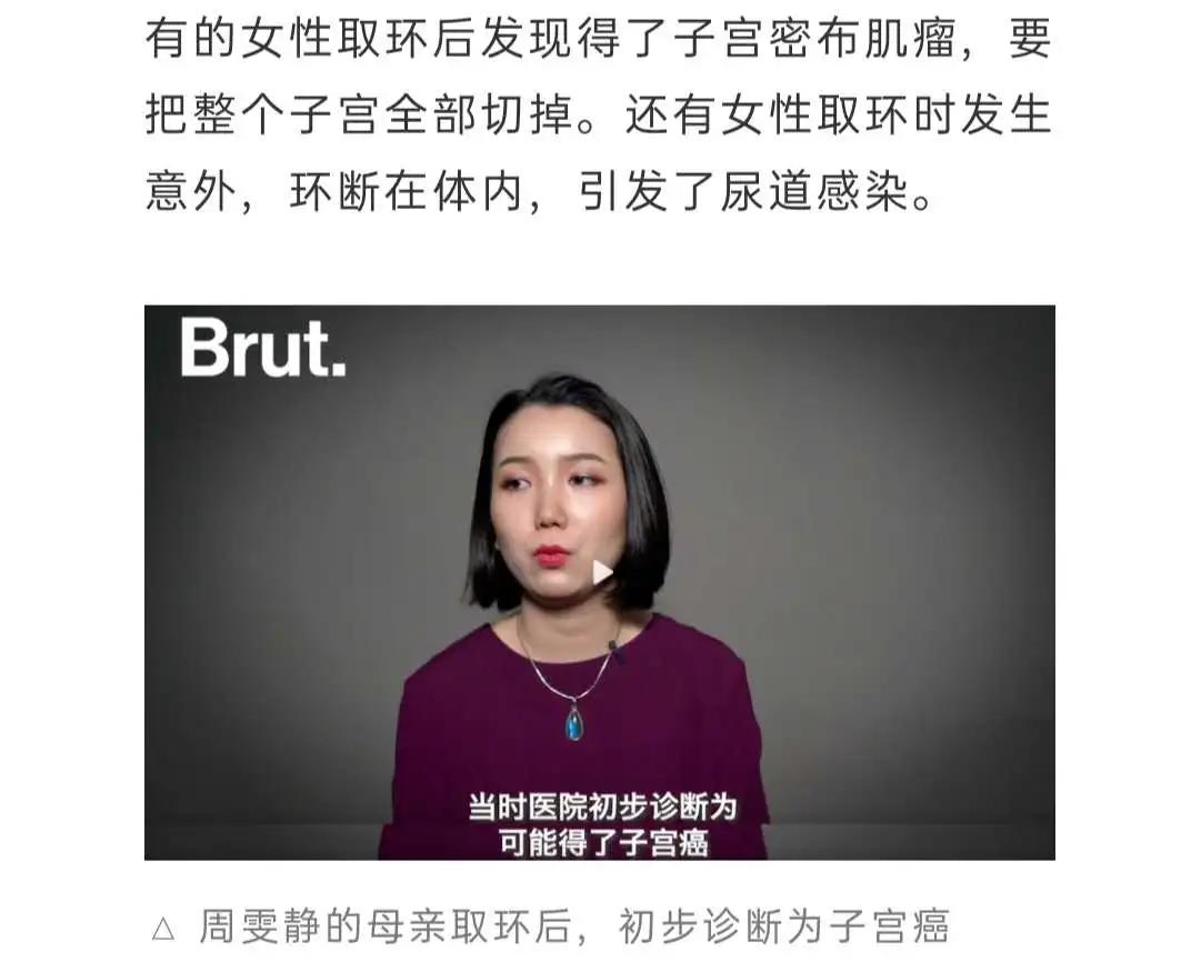 """""""残害一代中国女性""""的节育环,今日我想为它说上几句公道话"""