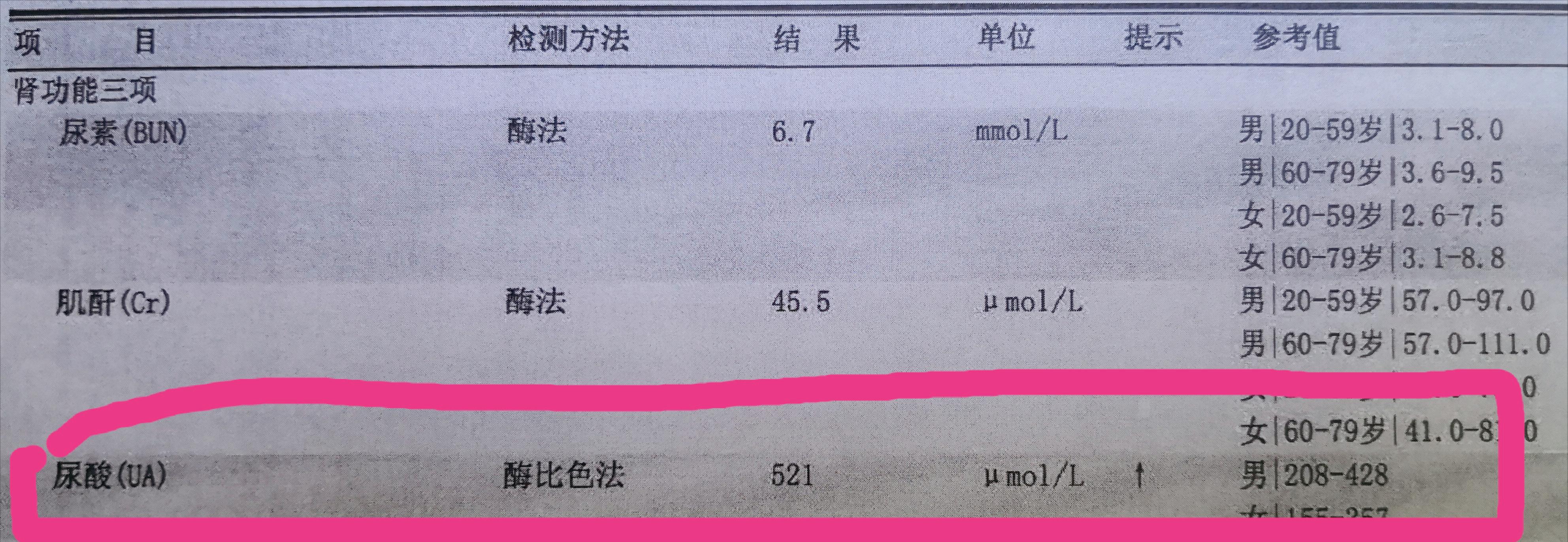 尿酸高,无痛风,吃药吗?中国、美国治疗方法不同!郭麒麟最该读