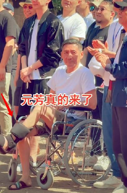 """""""元芳""""张子健近况曝光,身型暴瘦满头白发,受伤坐轮椅跷二郎腿"""