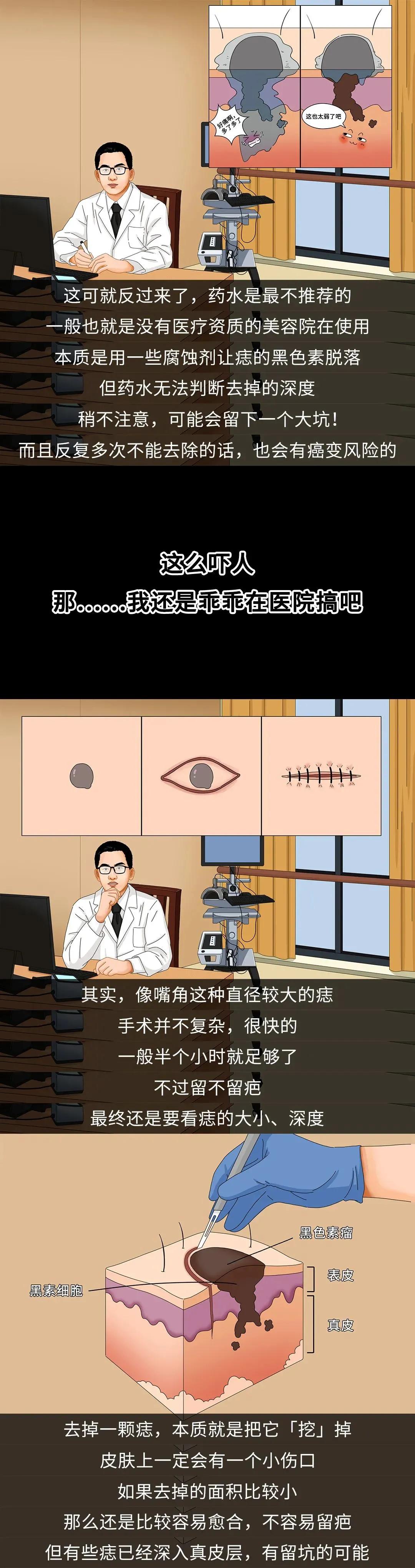 哪些痣会癌变?脸上的痣能点吗?专家这回终于说清楚了