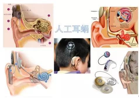 新生儿听力筛查未通过怎么办