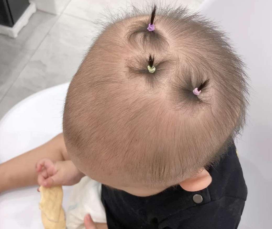 """同样都是新生儿,头发疏密却大不同,4招教你解决孩子""""秃""""烦恼"""