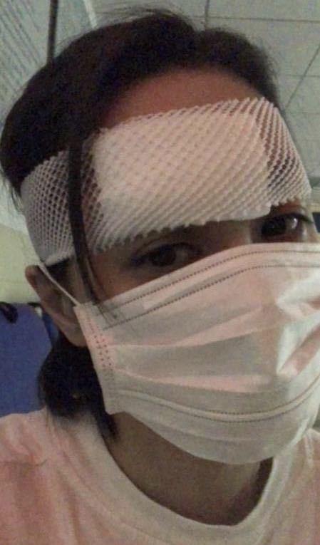 阿娇受伤过程及住院照曝光,老板杨受成正式回应:需要做二次手术