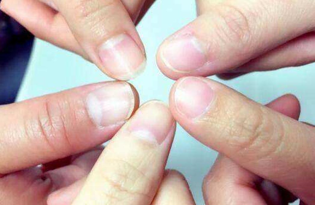 指甲没有月牙不健康?指甲月牙过多?教你3招养出健康月牙