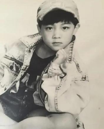 """""""三毛""""长大了!8岁成名,14岁秃顶,34岁变帅哥,植发挨300多针"""