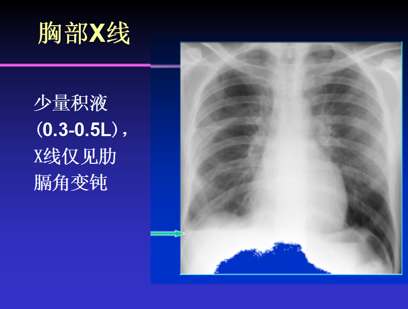 治疗胸水需要多久?首先你需要了解影响治疗的这些因素