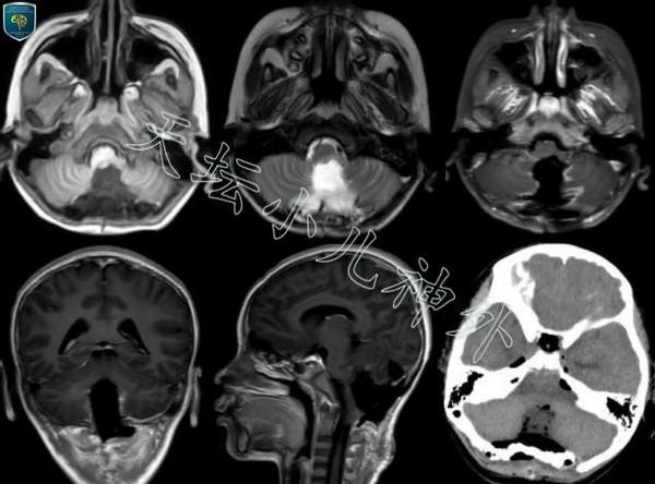 儿童脑干胶质瘤的手术治疗策略