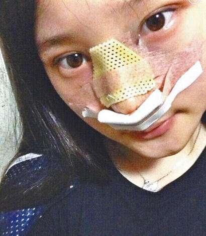 韩国女星痛哭竟然捏塌了鼻子?隆鼻风险到底有多大