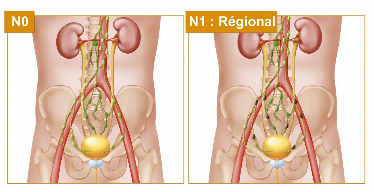 前列腺检查的指检太痛苦了,还有其他好办法可以可以检查吗?