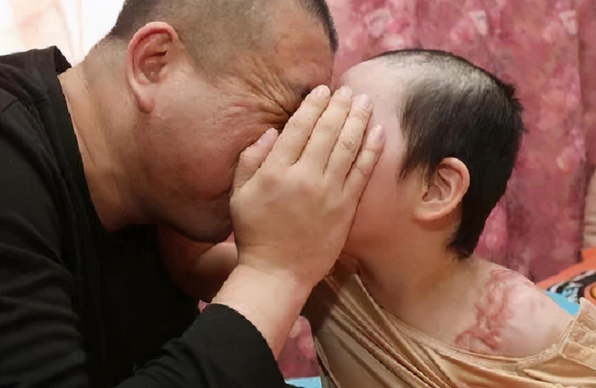 辽宁抚顺被虐女童已出院,上药时疼的大哭,却笑着安慰爸爸