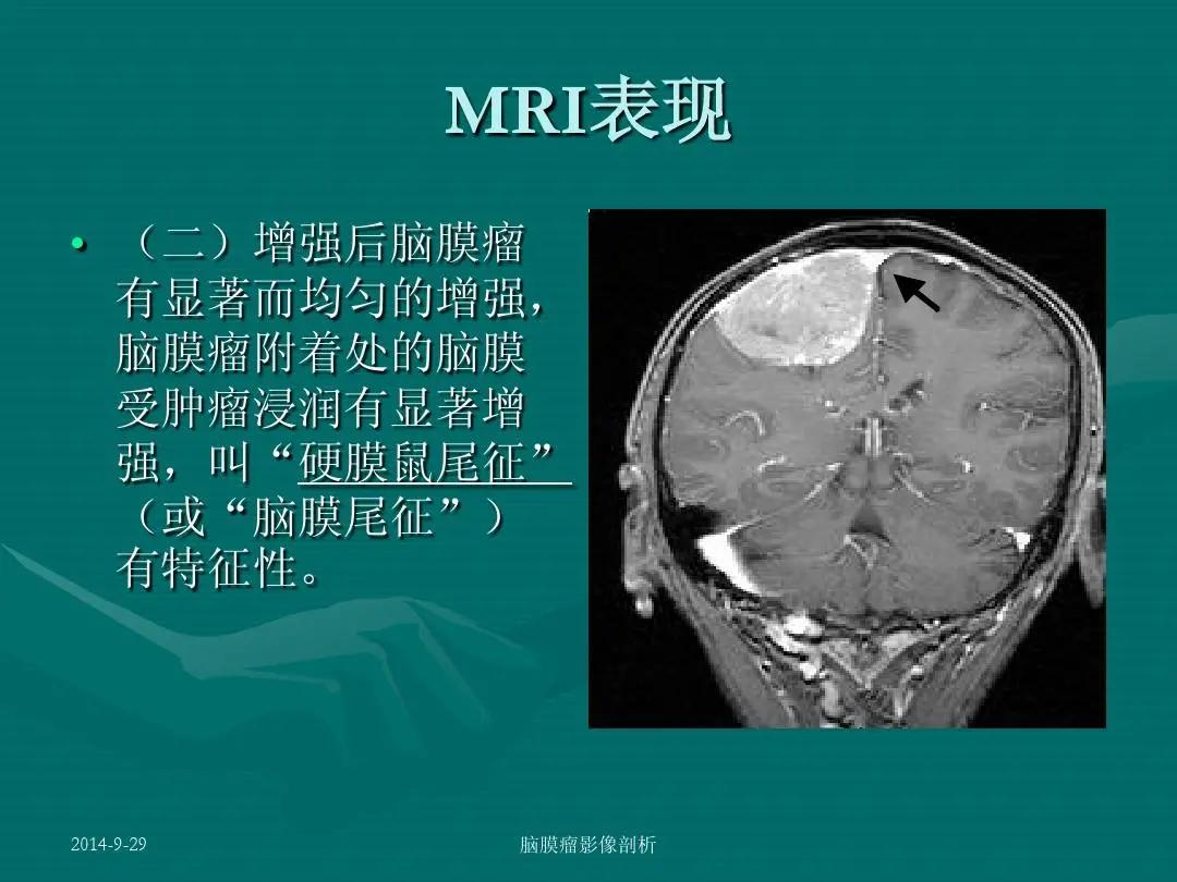 「名医解读」良性脑膜瘤不可大意,同样危及生命