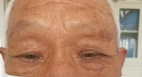 科普——眼整形手术是个什么手术?(多图)