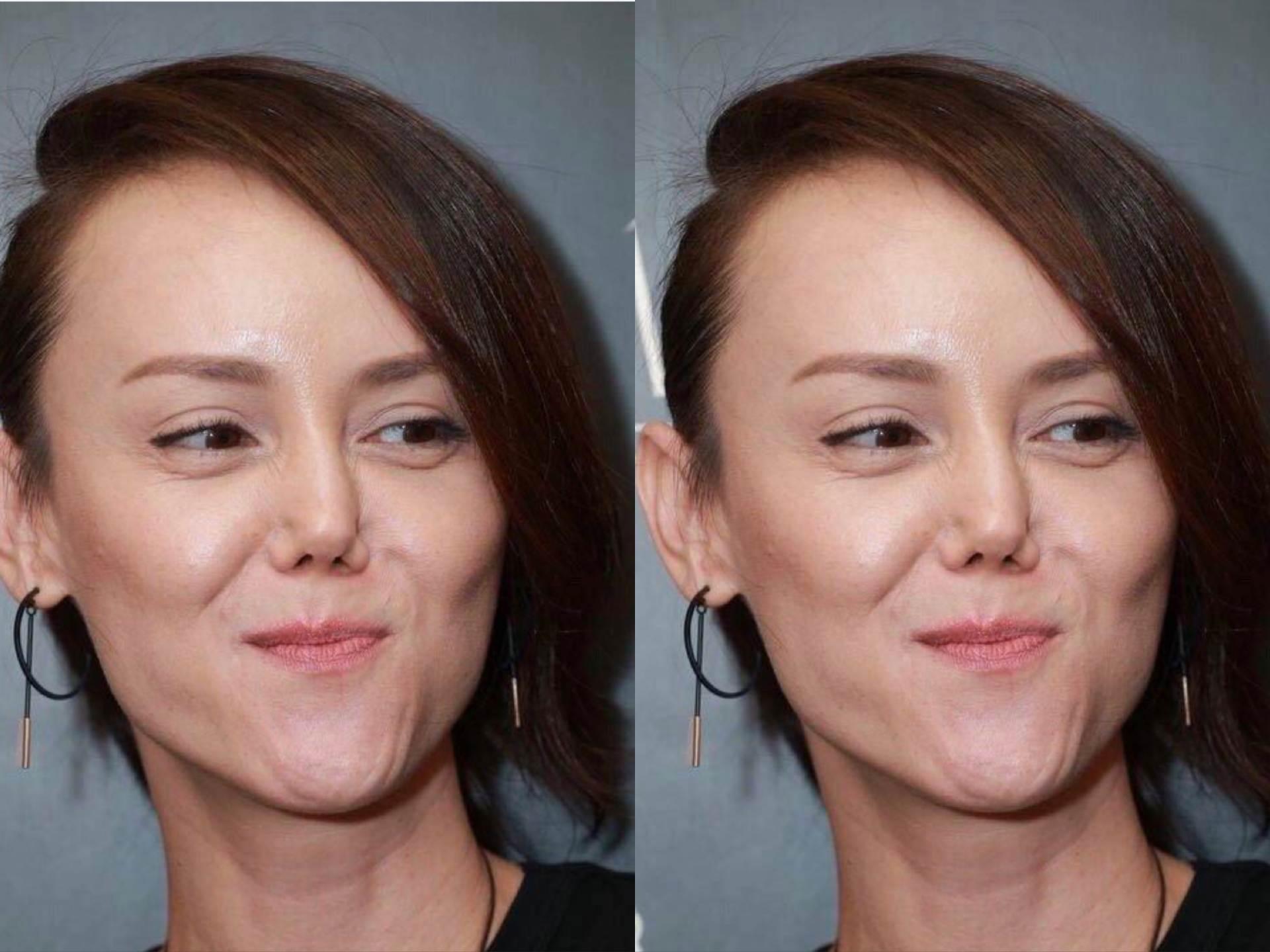 最美亚姐韩君婷宣布破产,欠债高达6位数,洗澡摔断鼻梁遭毁容