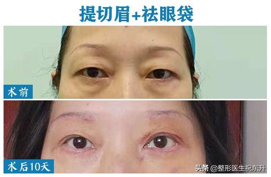 听医生谈一谈:提切眉术改善眼周衰老状态的体会
