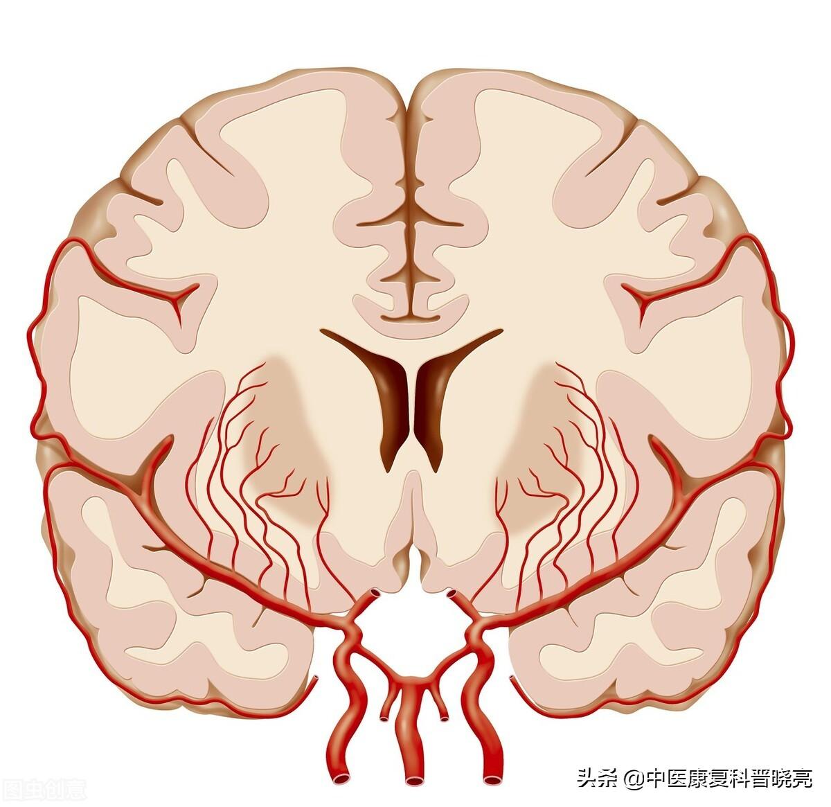 脑血管出问题,除了血压高以外,还有以下几个原因