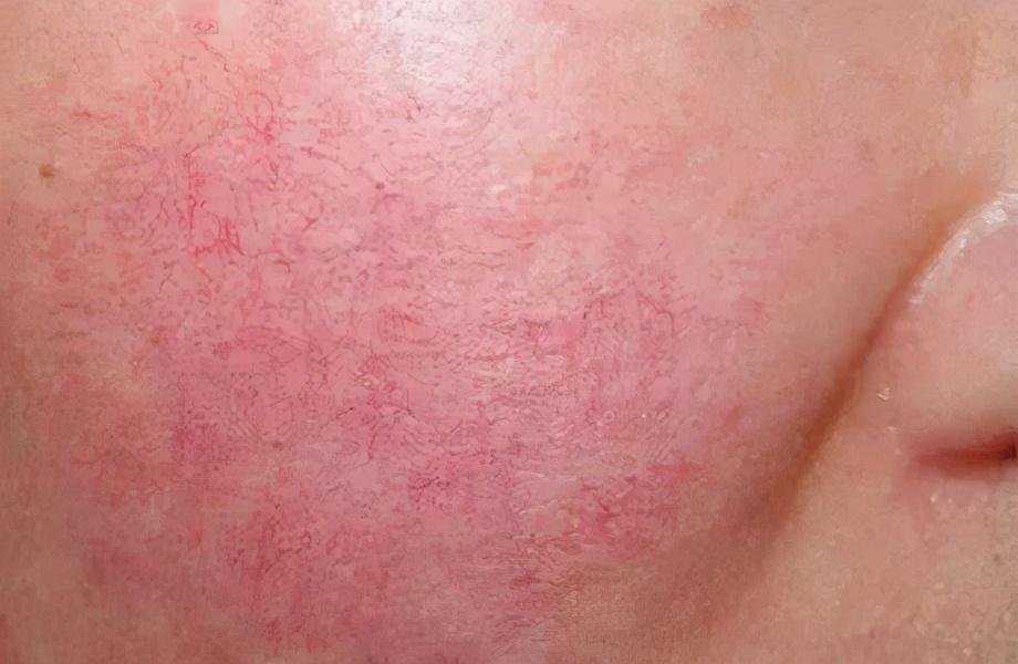 敏感肌生存指南,解救你水深火热的肌肤问题