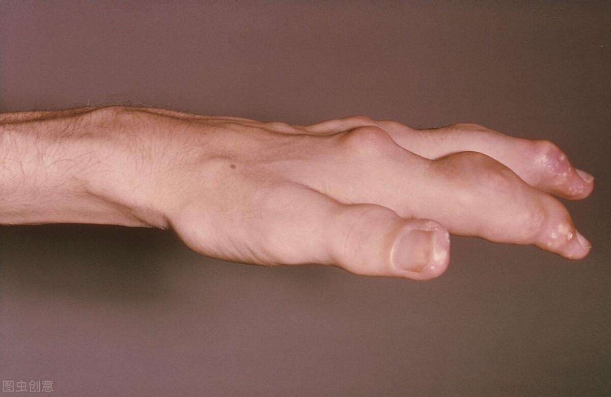 """痛风""""来势汹汹""""?初期要注意5个症状的控制!让痛风不再""""痛"""""""