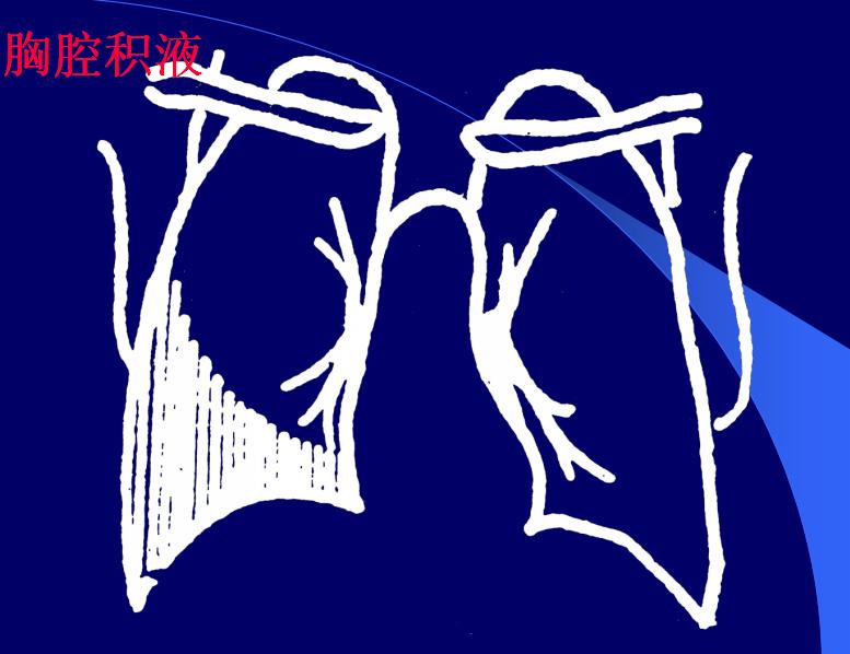 胸腔积液常见的原因有什么?可分为这两点