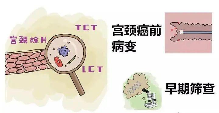 TCT、HPV报告单怎么看?一文教你读懂宫颈癌筛查结果